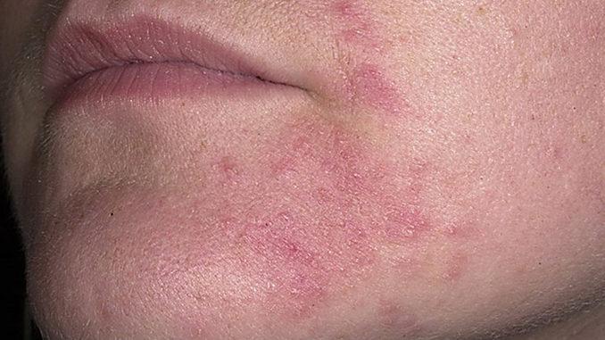 себорея-дерматит