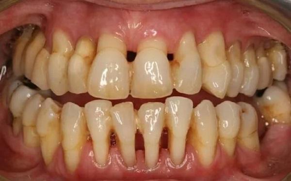 зубы при пародонтите
