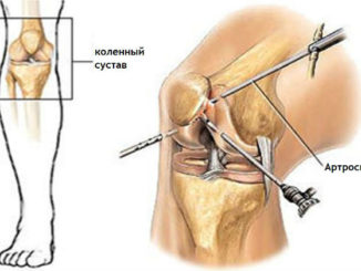 gonartroz-kolennogo-sustava-4