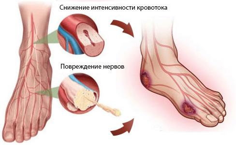 повреждение кровотока ног