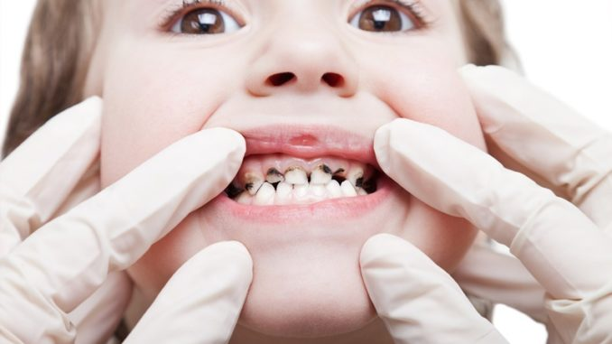чернеют молочные зубы