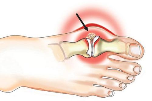 artros och artrit