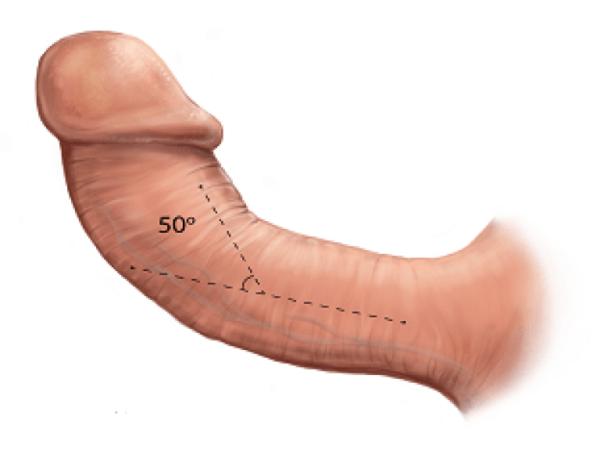 Все болезни пенисов