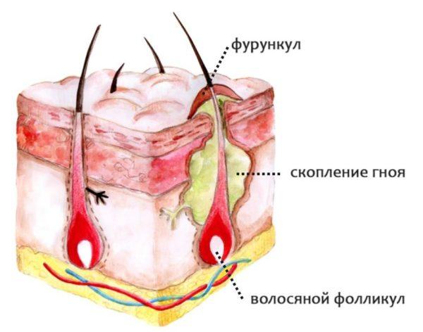 Воспаление волосяных фолликулов на ногах