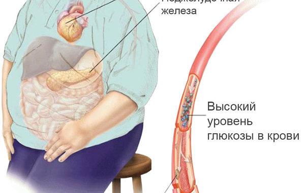 Как снять приступ поджелудочной железы в домашних условиях 754